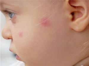 Аллергия прыщики у детей 17