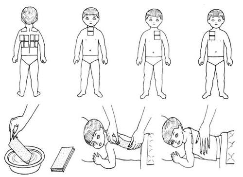 Как ставить себе горчичники как поставить горчичники на спину