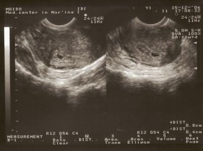 Вагинальное узи на раних сроках беременности