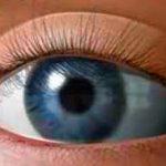 Признаки катаракты, особенности лечения